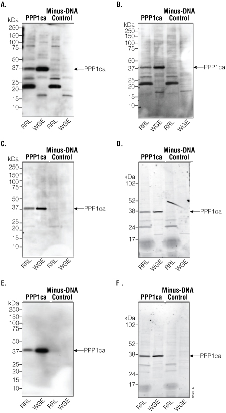 Western blot analysis of PPP1ca.